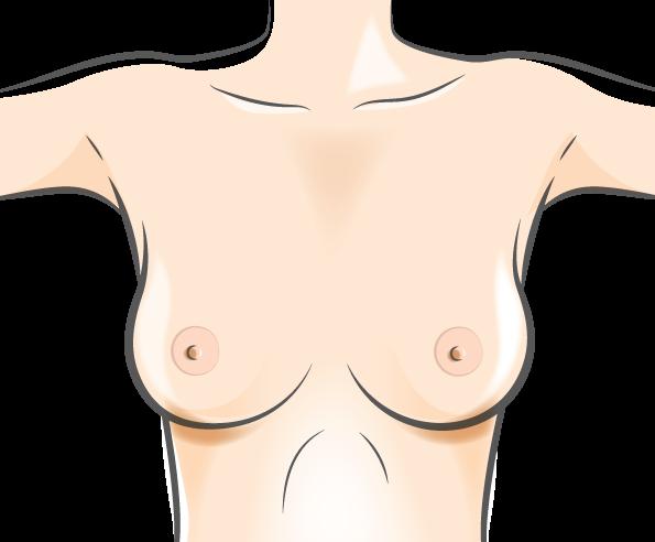 Institut du sein Orléans - Reconstruction mammaire par diep